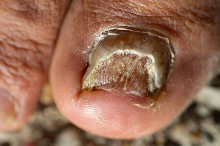 A close up of a foot with the toe with the toe with candida albicans.