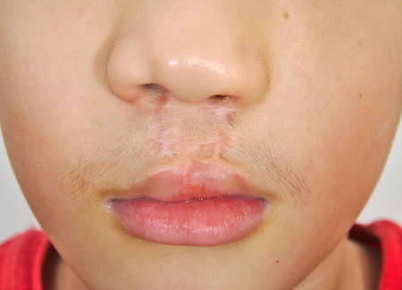 cleft: Boy showing a bilateral cleft lip repaired Stock Photo