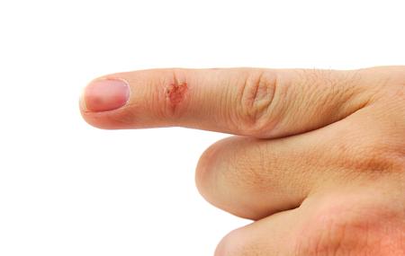 to wound: Herida en el bebé o el dedo meñique aislado en fondo blanco