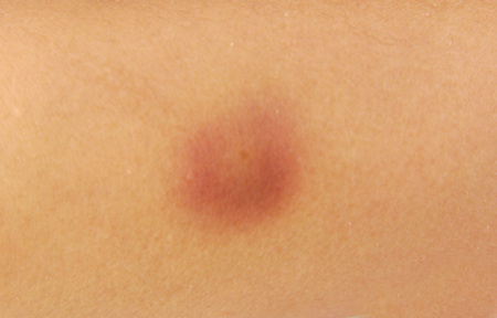 seeping: Closeup of a bruise on a wounded woman knee skin