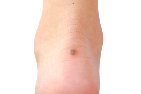 cancer foot: Close up of a wart on a persons heel Stock Photo