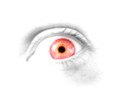 sighting: A Closeup View On A Isolated Eyeball With A Shocking Case Of Red Eye Stock Photo