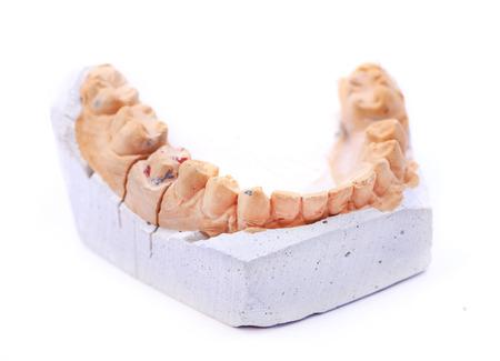 Gypsum sample isolated on white Denture photo