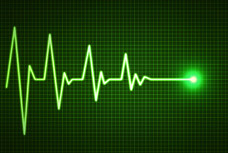 heart beat: Heart Beat line End of Life