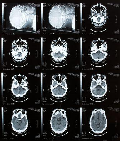 Brain Tomography Stock Photo - 788072