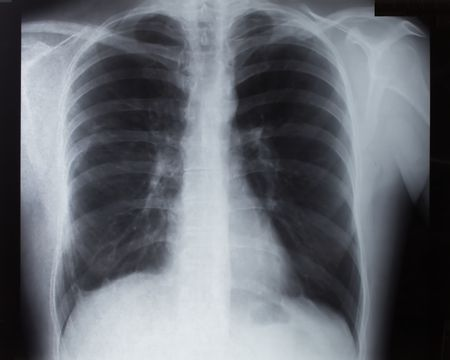 chest xray: Broken Clavicle X-Ray (car accident)