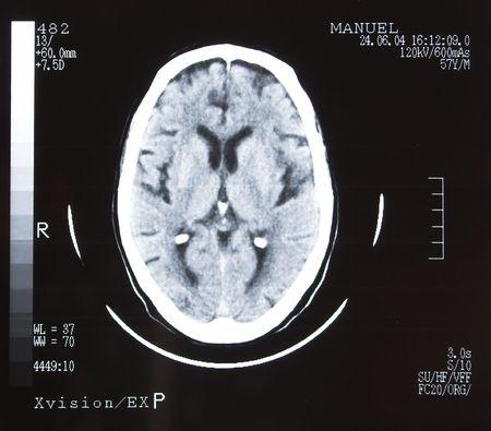 Tomografia cervello