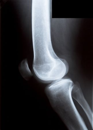 x-ray of the knee, femur and tibia photo