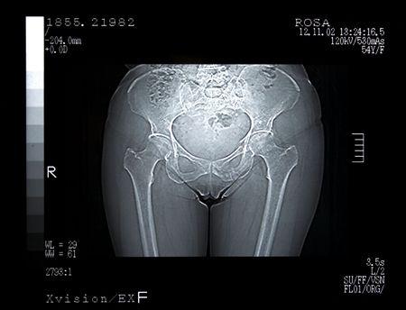 Scan of a Broken Pelvis. CT Scan photo