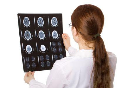 Femme médecin examine un cerveau cat scan  Banque d'images