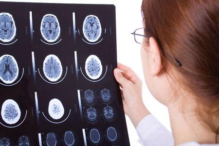 Medico di sesso femminile l'esame di una scansione del cervello gatto  Archivio Fotografico