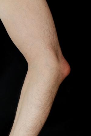 codo: Bursitis del olécranon, también conocida como codo de estudiante, es una enfermedad causada por la inflamación de la bursa del olécranon ubicado debajo del codo debido a la fuerte trauma único o traumas menores repetitivas