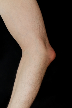 warmness: Olecranon bursitis, also known as student's elbow, is a medical condition caused by the inflammation of the bursa located under the elbow's Olecranon due to strong single trauma or repetitive smaller traumas