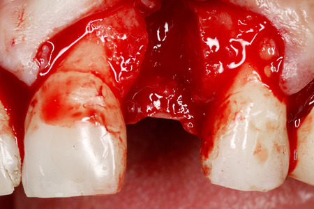 prothesis: actual dental implant surgery