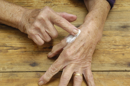 ointment: Elderly woman putting on ointment