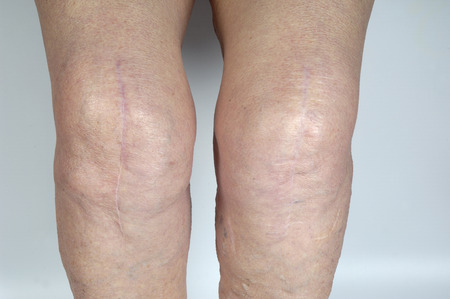 restricting: scar on the knee of an elderly woman,