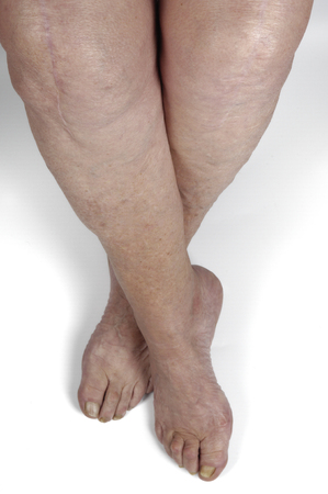 restricting: leg and knee scar on a senior  woman Stock Photo