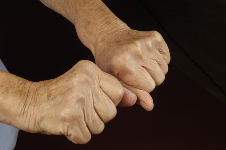 80 plus adult: old womans hands