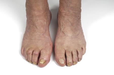 restricting: senior woman foot