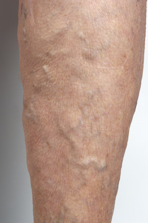 varicose veins in the leg of a woman, Stock Photo