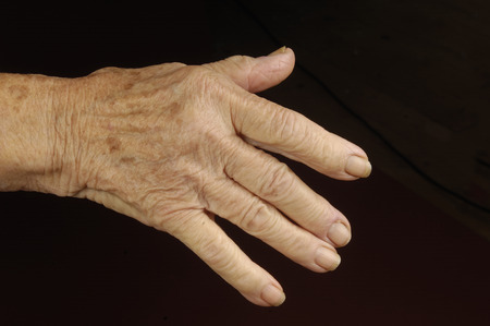80 plus adult: old woman hand