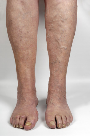 varicose veins: varicose veins in the leg of a woman, Stock Photo