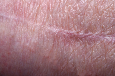 scar: scar on the knee of an older woman