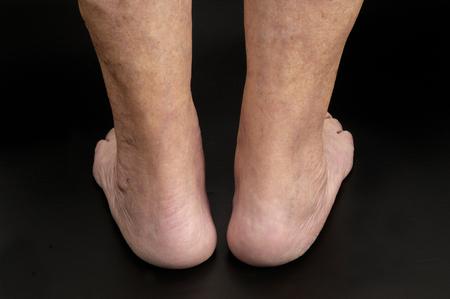 achilles tendon: Achilles tendon