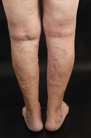 varicose: varicose veins in the leg of a woman, Stock Photo