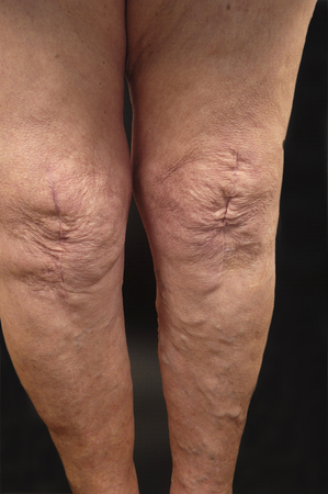 varicose: varicose veins in the leg of a woman