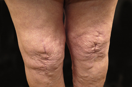 scarring: scarring after surgery knee prosthesis