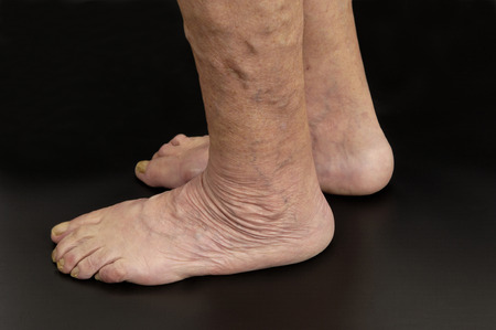 achilles tendon: Achilles tendon,
