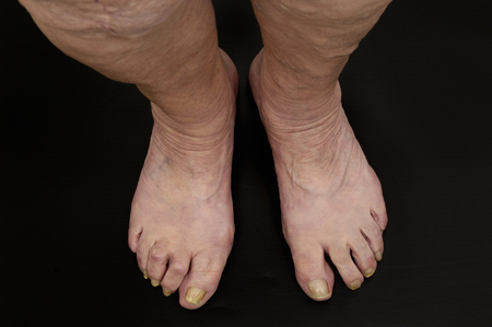 foot fungus: feet of a senior woman