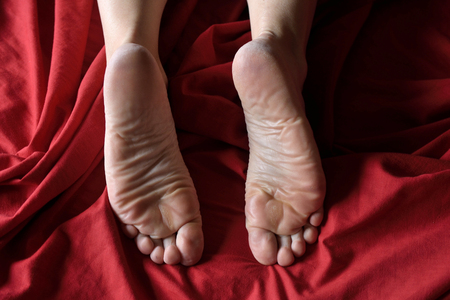 calluses on the feet, woman