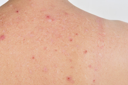 dermatitis on the back of a woman