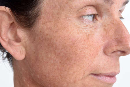 the skin of the face of a forty-five-year-old woman