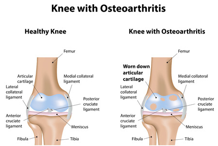 osteoarthritis: Knee Joint with Osteoarthritis Illustration