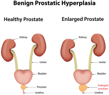 Benign Prostatic Hyperplasia Vector