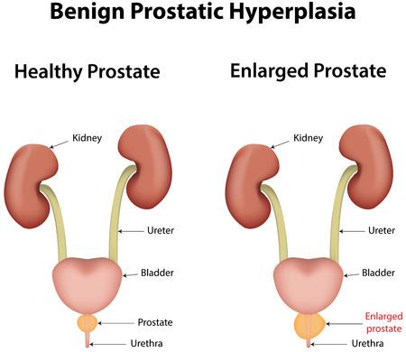 benign: Benign Prostatic Hyperplasia