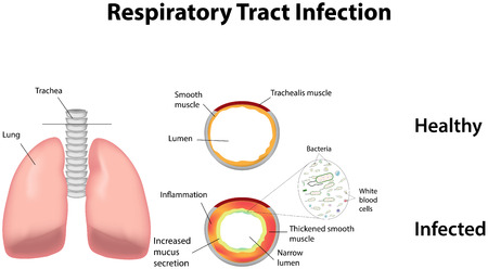 infektion: Infektion der Atemwege