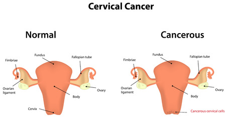Cervical cancer royalty free cliparts vectors and stock 30251284 cervical cancer vector similar images ccuart Choice Image