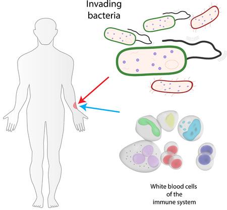 skin infections: Curaci�n Infecci�n