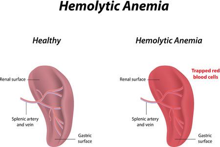 anaemia: Anemia hemol�tica Vectores