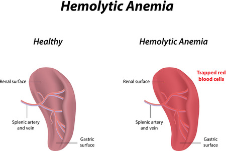 endocrine: Hemolytic Anemia Illustration
