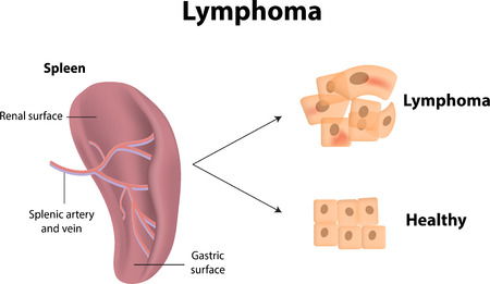 Lymphoma Vector