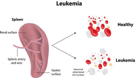 spleen: Leukemia
