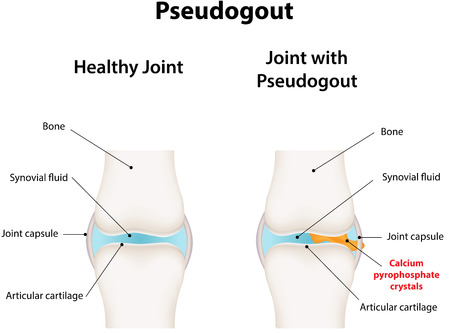 calcification: Pseudogout