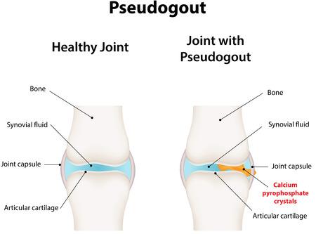 arthritis pain: Pseudogout
