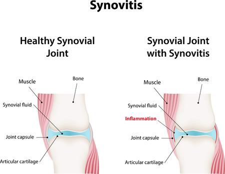 Synovitis Vektorové ilustrace