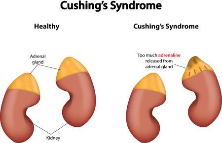 suprarrenales: Síndrome de Cushing
